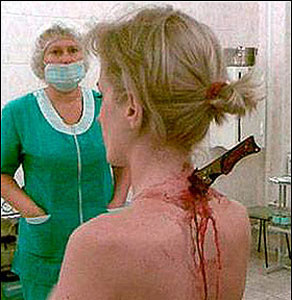 This Russian woman walked home for 40minutes unaware she had this in her neck!